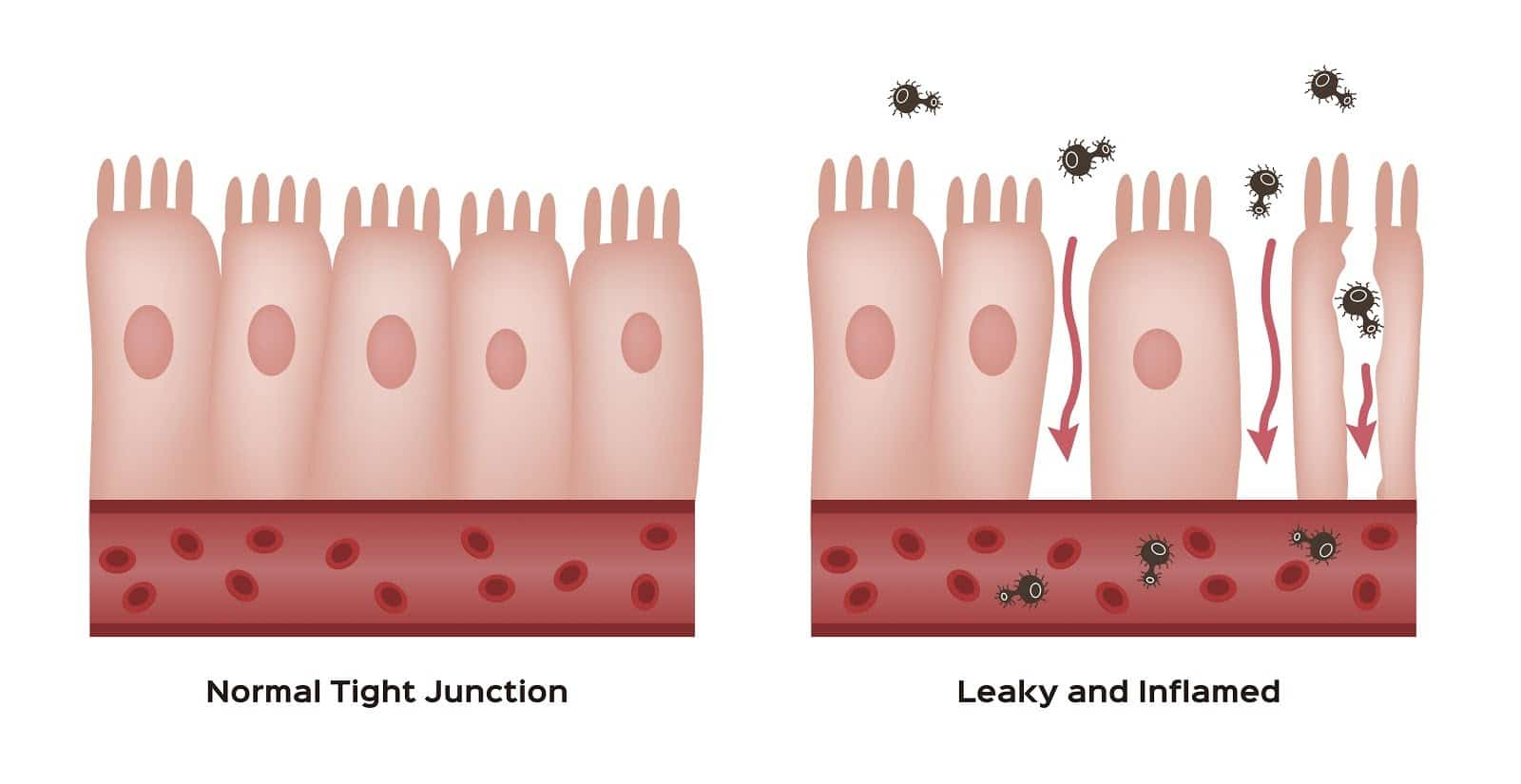 graphic-of-the-inner-walls-of-the-gut-showing-normal-tight-junctions-and-a-leaky-gut-side-by-side