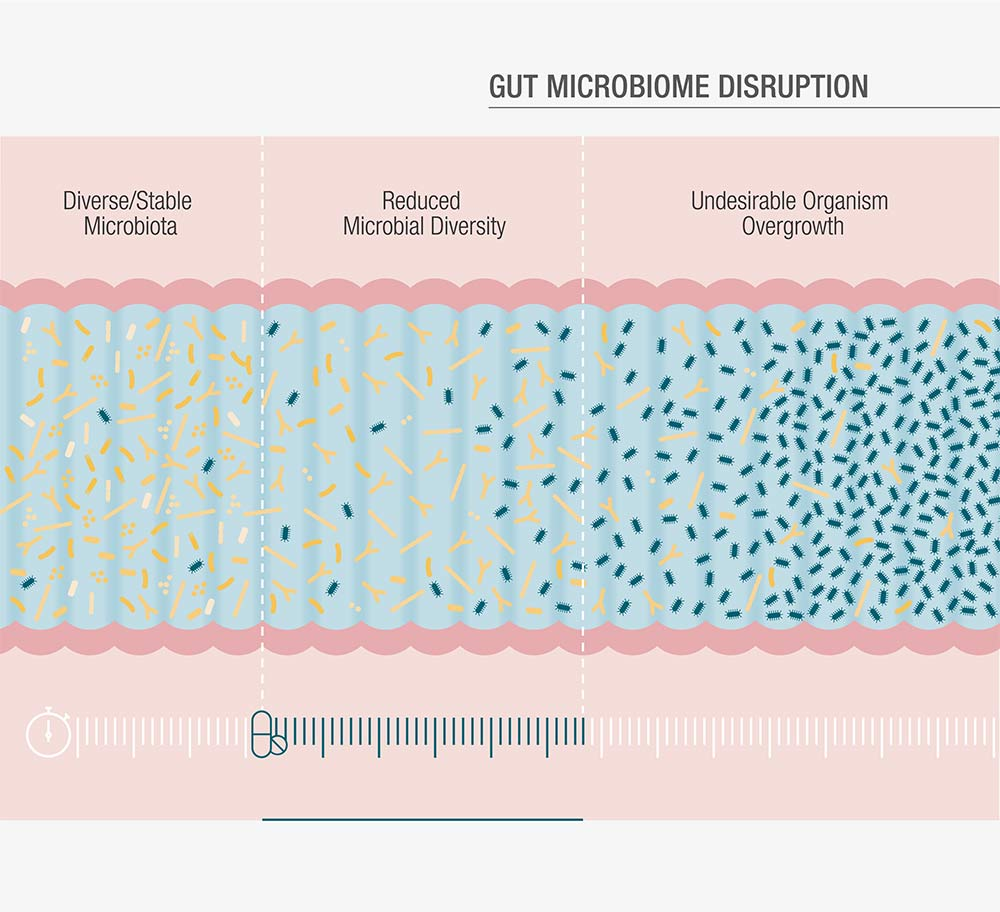 gut microbiome disruption